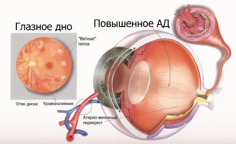 кровоизлияние в сетчатку вследствие высокого АД