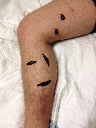 Тромбофлебит геморроидальных вен заднего прохода лечение