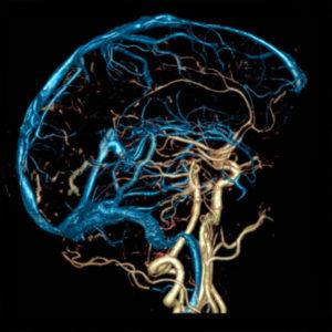 как выявить тромбоз сосудов головного мозга