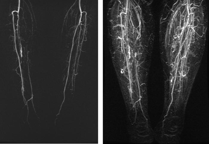 диагностика сосудов нижних конечностей