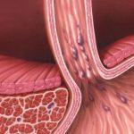 симтптомы и лечение патологии