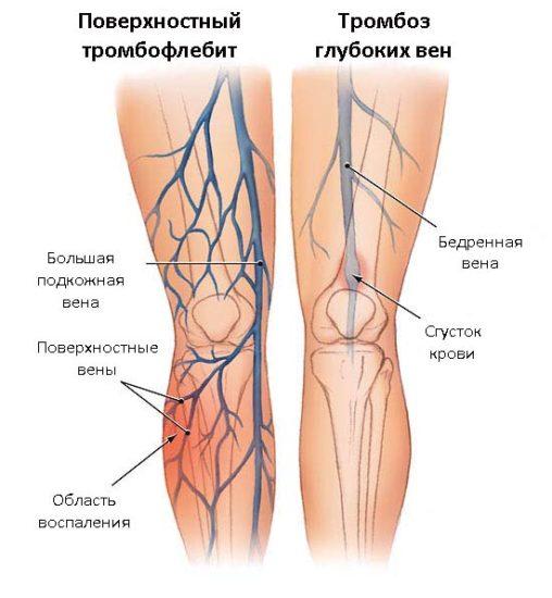 симптомы при тромбофлебите
