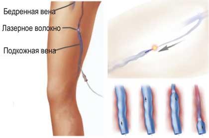 эндоваскулярное лазерное лечение варикоза
