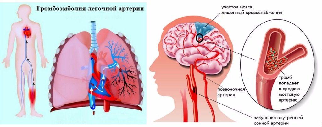 что представляет собой тромбофилия