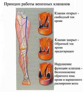 причины болей в ногах при варикозе