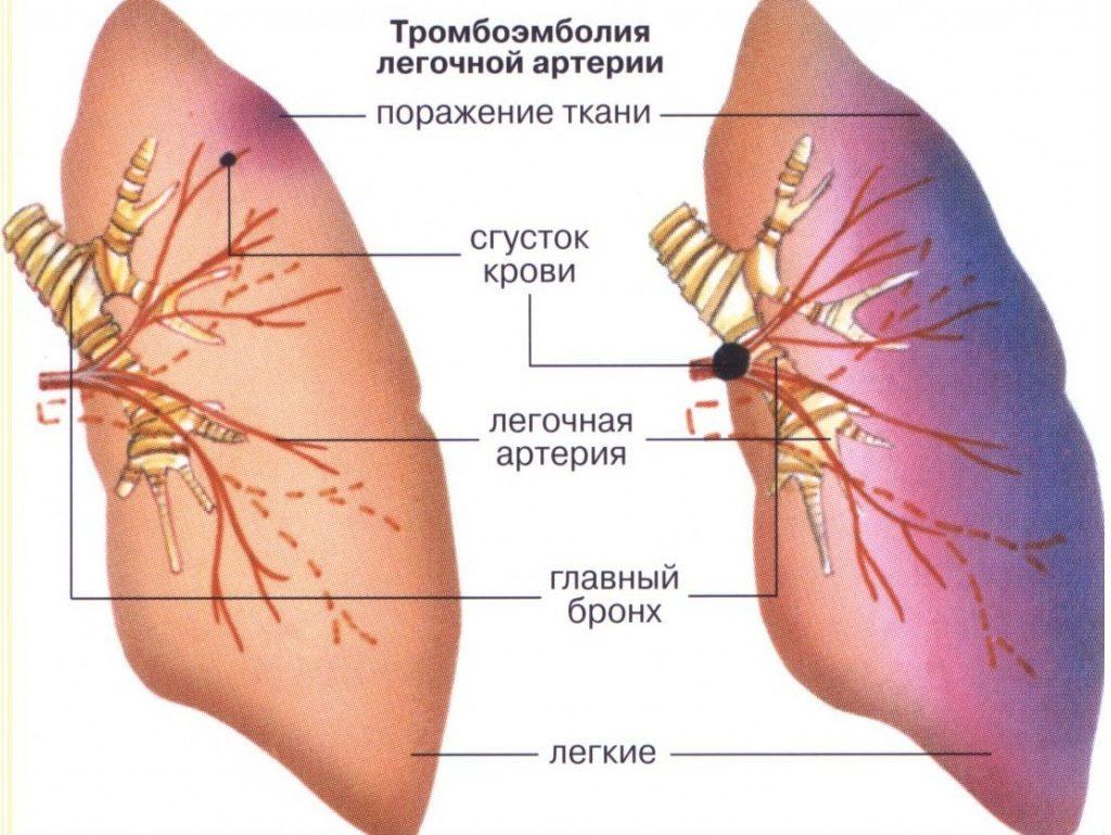 что происходит в легких при тромбоэмболии