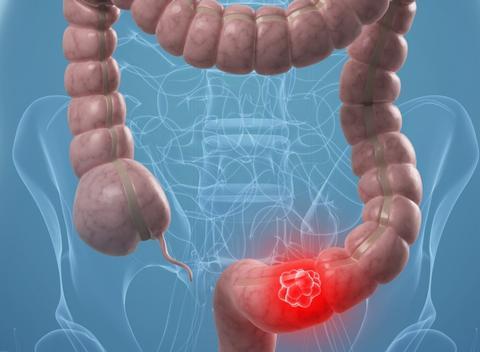мезентеральный тромбоз 1