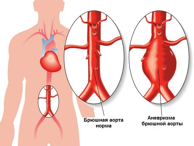 причины и симптомы аневризмы брюшного отдела аорты