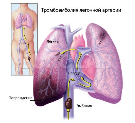 осложнения послеоперационного тромбофлебита