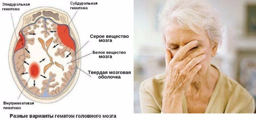 симптомы амилоидной ангиопатии