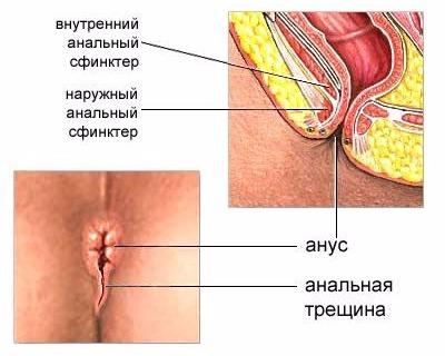 Лечение геморроя при кормящей маме