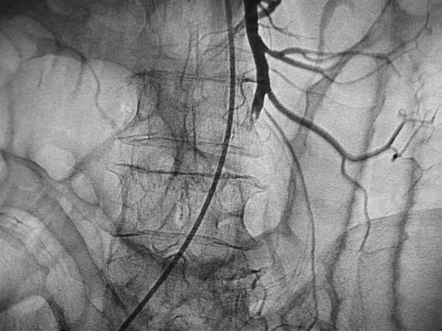 диагностика тромбоза мезентеральных сосудов