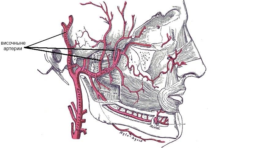 темпоральный артериит