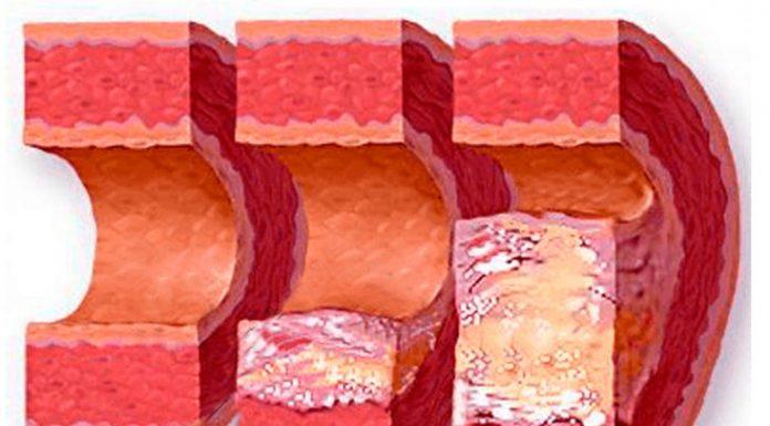 атеросклероз аорты лечение и диагностика