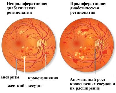 виды диабетической ретинопатии
