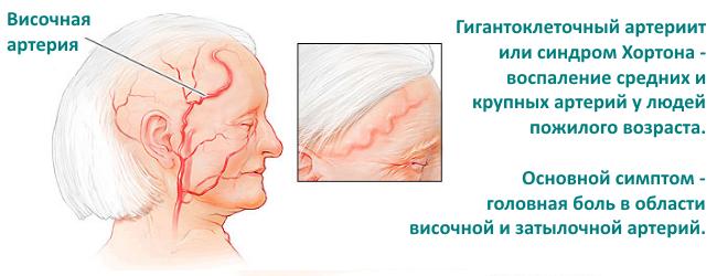 симптомы гигантоклеточного артериита