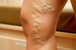 как помогают упражнения при тромбофлебите
