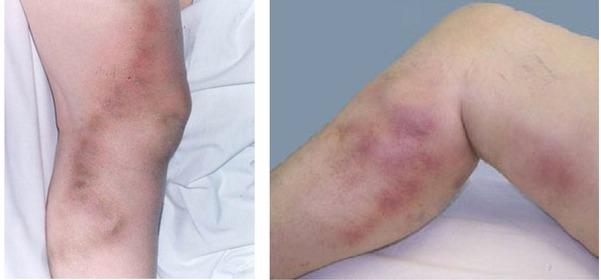 симптомы и лечение мигрирующего тромбофлебита