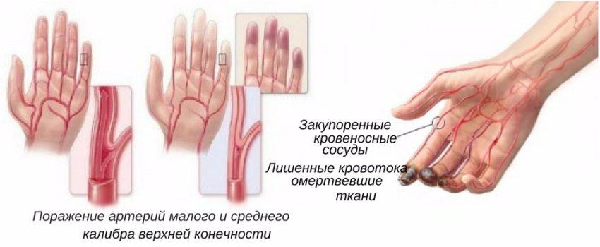 болезнь сосодов Бюргера