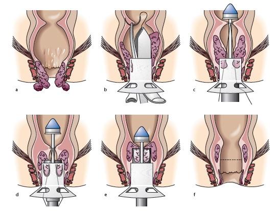 хирургическое лечение геморроидальных узлов