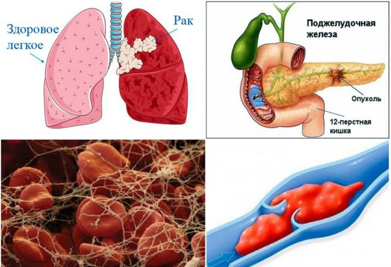 тромбофлебит при раке поджелудочной железы и раке легкого