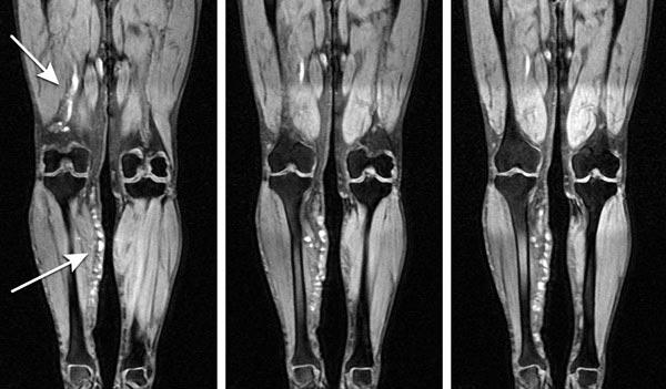 диагностика тромбофлебита и флеботромбоза