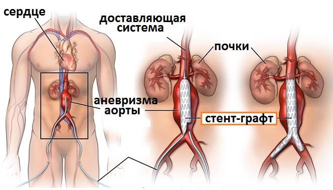 статин стентирование