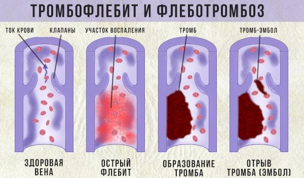 осложнения тромбофлебита