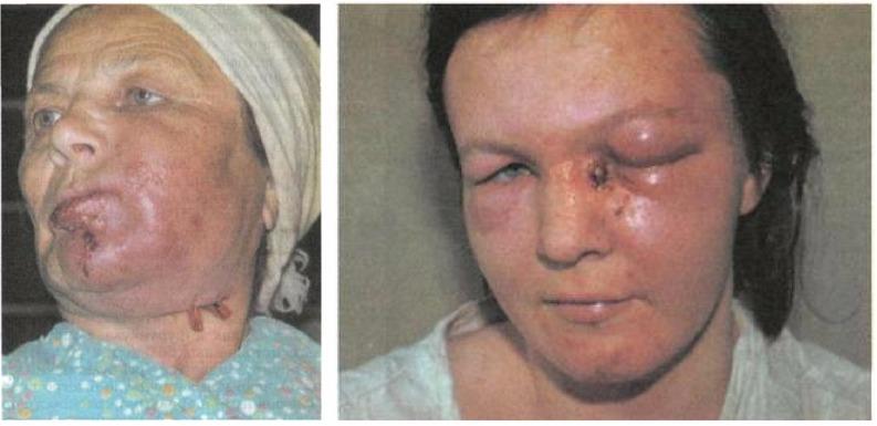 симтомы тромбофлебита на лице