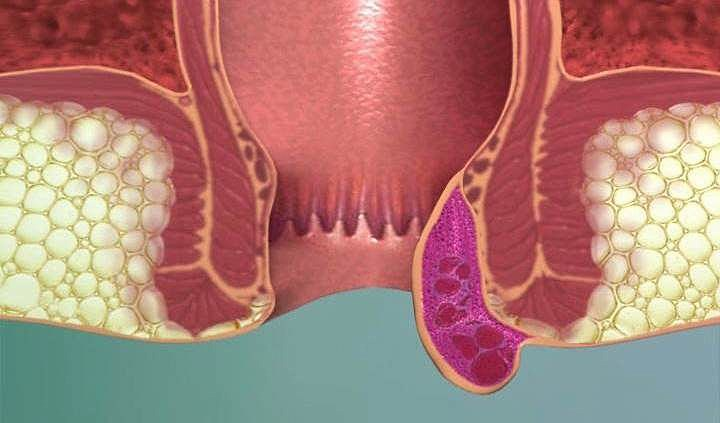 лечение тромбоза вен заднего прохода