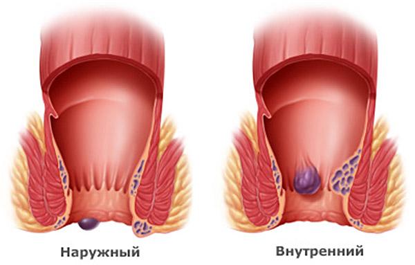причины и лечение тромбофлебита геморроидальных вен