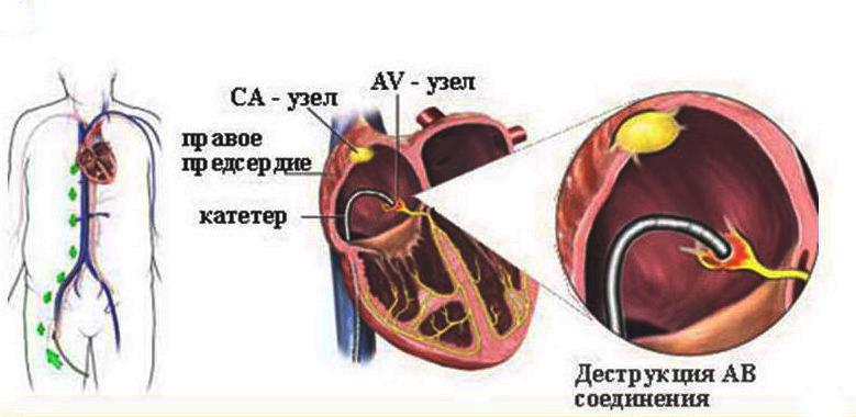 Оперативное лечение аритмии