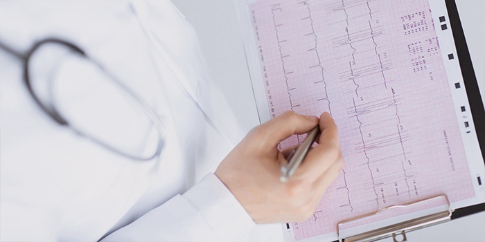 симптомы и причины пароксизмальной желудочковой тахикардия