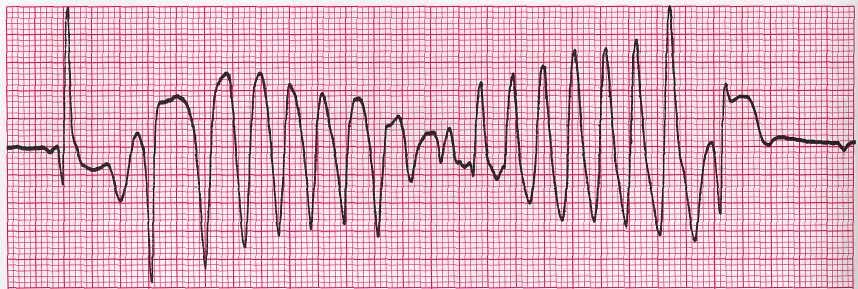 Что такое желудочковая тахикардия и как ее лечить