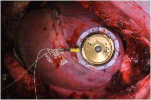 как происходит замена батареи в кардиостимуляторе