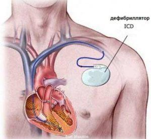 профилактика желудочковой тахикардии