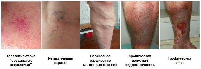 Что полезно при варикозе ног