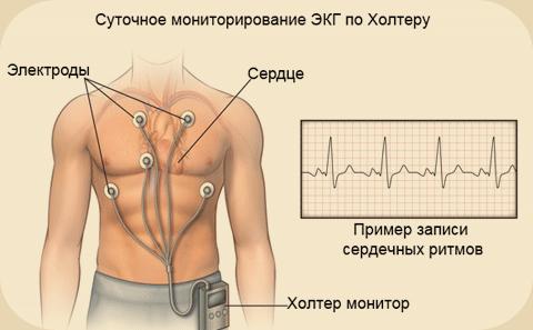 контроль мерцательной аритмии
