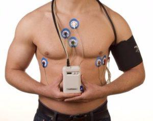 холтеровское мониторирование при диагностике предсердной экстрасистолии