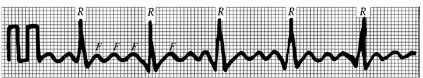 мерцательная аритмия на ЭКГ