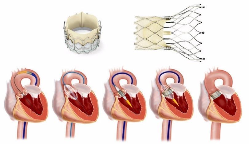 оперативное лечение аортального клапана