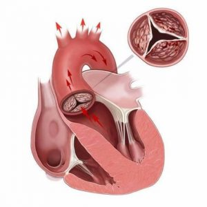атеросклероз аорты, клапанов сердца