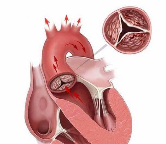 Подробный анализ крови на холестерин