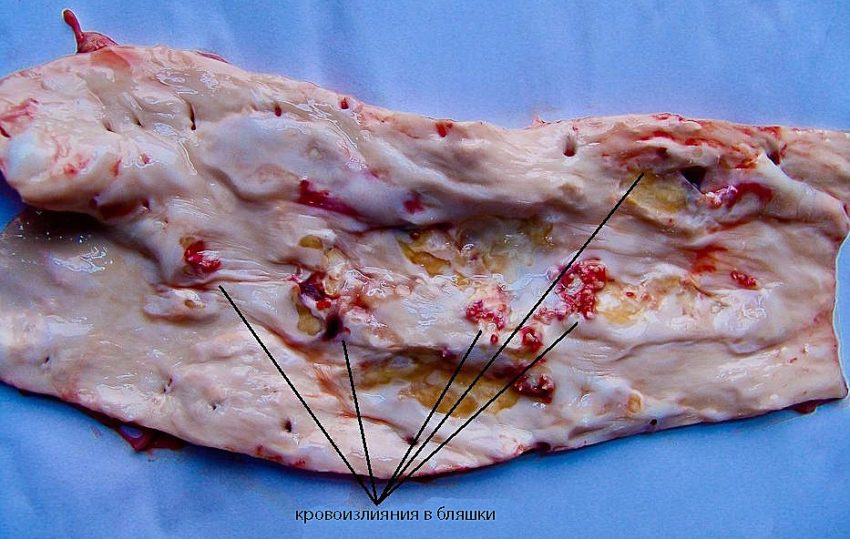 кровоизлияния в бляшки