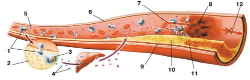 механизм развития атеросклеротической бляшки
