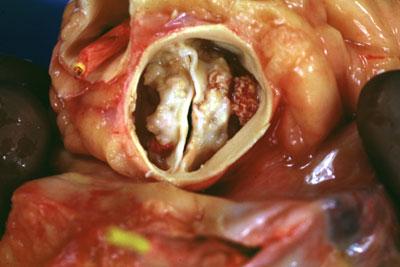 причины стеноза аортального клапана