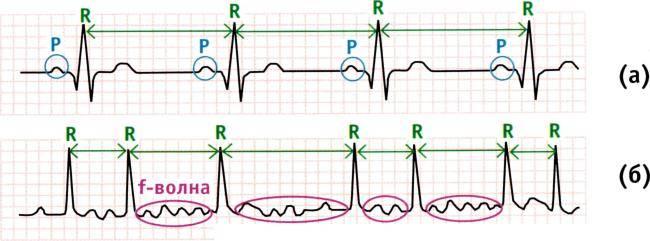 диагностика нарушений ритма