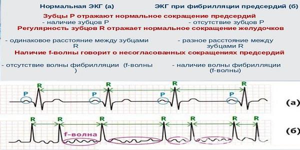 классификация мерцательной аритмии