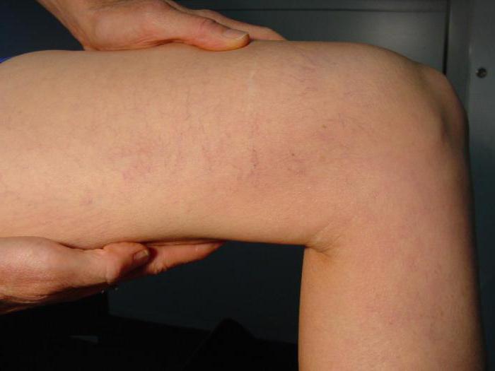 Тромбоз глубоких вен левой голени