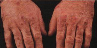 как выглядит ревматоидный васкулит